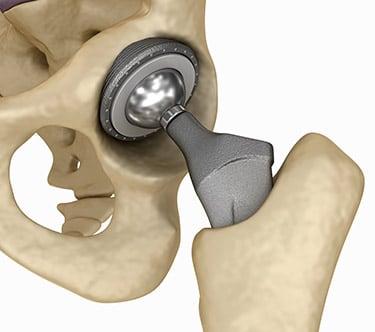csípőízületi protézis fájdalom műtét után