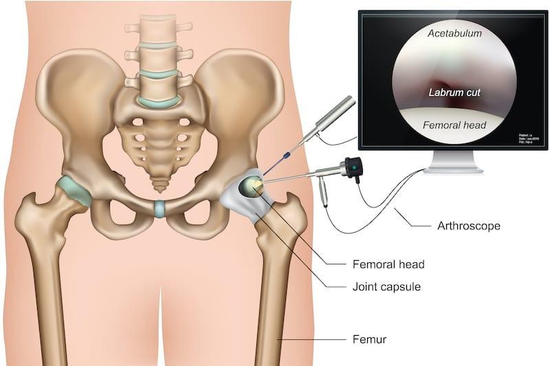 csípő és csípő sérülések